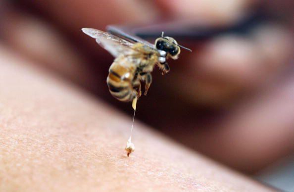 honey-bee-sting